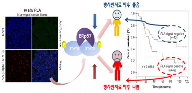 ERp57과 STAT3이 결합된 단백질이 다량 발견될 경우 방사선 치료 예후가 좋지 않다는 것이 밝혀졌다. - 한국원자력의학원 제공